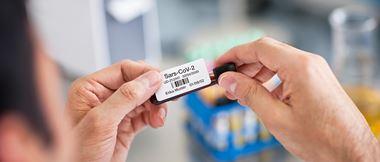 Medizinische Fachkraft beschriftet eine Probe mit Klebe-Etikett aus Etikettendrucker.